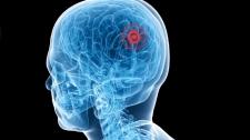 TED Talks Phẫu Thuật Bằng Sóng Siêu Âm, Chữa Trị Không Cần Cắt Mổ - Yoav Medan Công Nghệ Sinh Học - Y Tế - Sức Khỏe